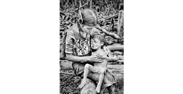 Niña desnutrida, Campamento Chajul, Chiapas, 1981. Foto: Antonio Turok